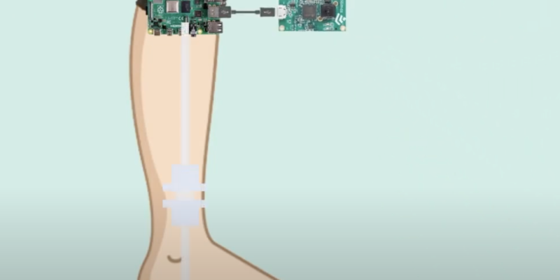 raspberry pi strapped to user's knee to detect Parkinson's Disease
